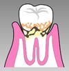 歯周病の進み方